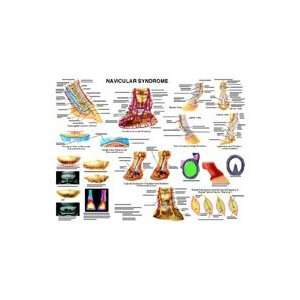 Equine Navicular Syndrome Anatomy Chart  Industrial